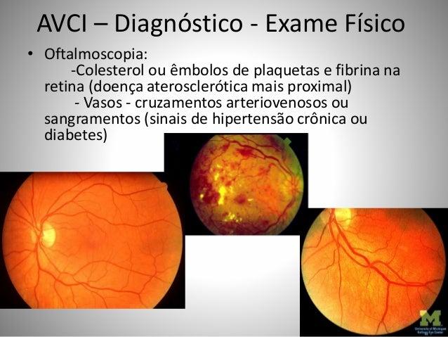 AVCI – Diagnóstico - Exame Físico • Oftalmoscopia: -Colesterol ou êmbolos de plaquetas e fibrina na retina (doença aterosc...
