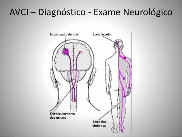 AVCI – Diagnóstico - Exame Neurológico
