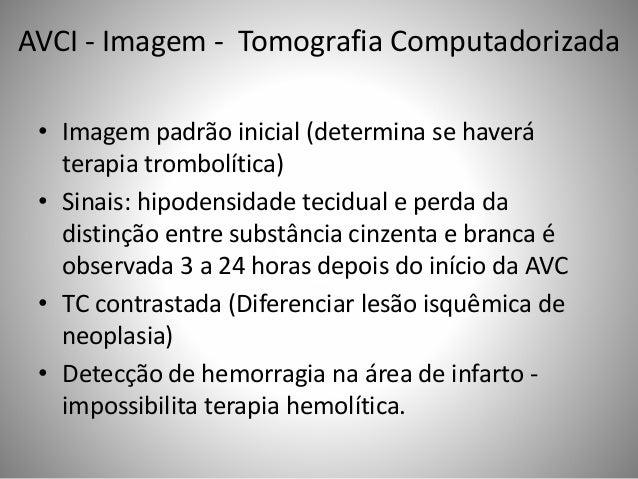 AVCI - Imagem - Tomografia Computadorizada • Imagem padrão inicial (determina se haverá terapia trombolítica) • Sinais: hi...