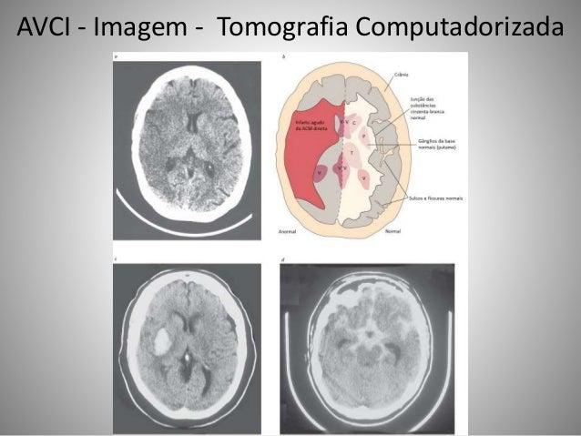 AVCI - Imagem - Tomografia Computadorizada
