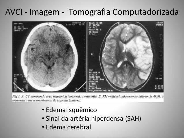 • Edema isquêmico • Sinal da artéria hiperdensa (SAH) • Edema cerebral AVCI - Imagem - Tomografia Computadorizada