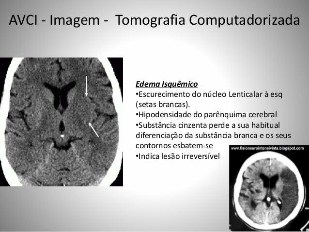 Edema Isquêmico •Escurecimento do núcleo Lenticalar à esq (setas brancas). •Hipodensidade do parênquima cerebral •Substânc...