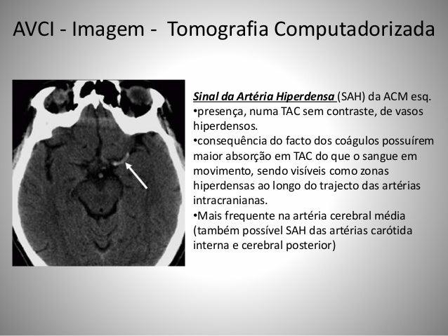 Sinal da Artéria Hiperdensa (SAH) da ACM esq. •presença, numa TAC sem contraste, de vasos hiperdensos. •consequência do fa...