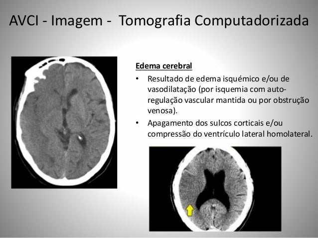 Edema cerebral • Resultado de edema isquémico e/ou de vasodilatação (por isquemia com auto- regulação vascular mantida ou ...