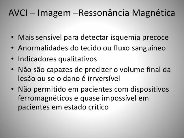 AVCI – Imagem –Ressonância Magnética • Mais sensível para detectar isquemia precoce • Anormalidades do tecido ou fluxo san...