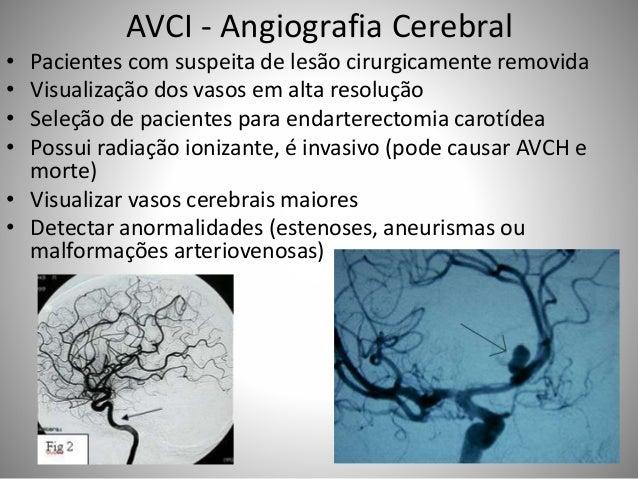 AVCI - Angiografia Cerebral • Pacientes com suspeita de lesão cirurgicamente removida • Visualização dos vasos em alta res...
