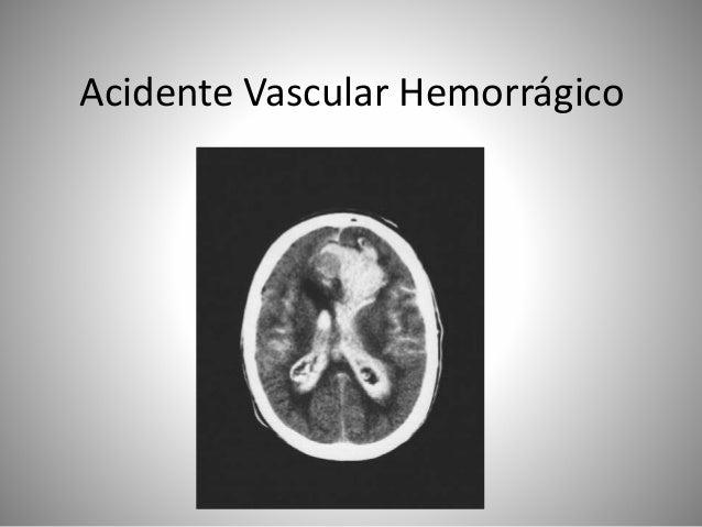 Acidente Vascular Hemorrágico