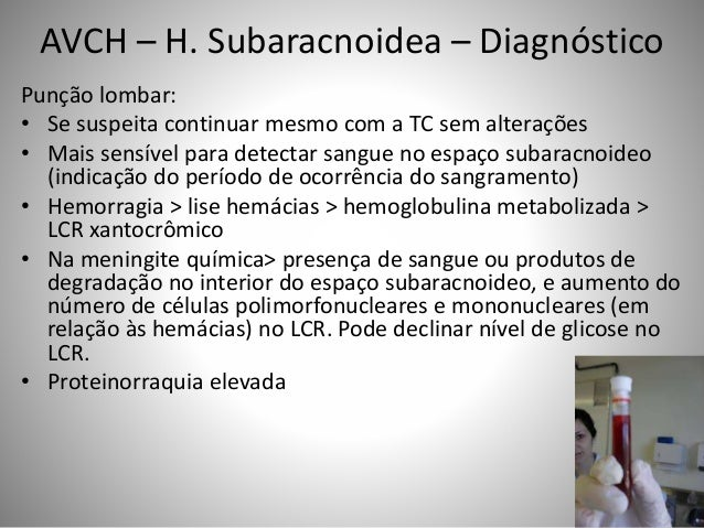 Punção lombar: • Se suspeita continuar mesmo com a TC sem alterações • Mais sensível para detectar sangue no espaço subara...