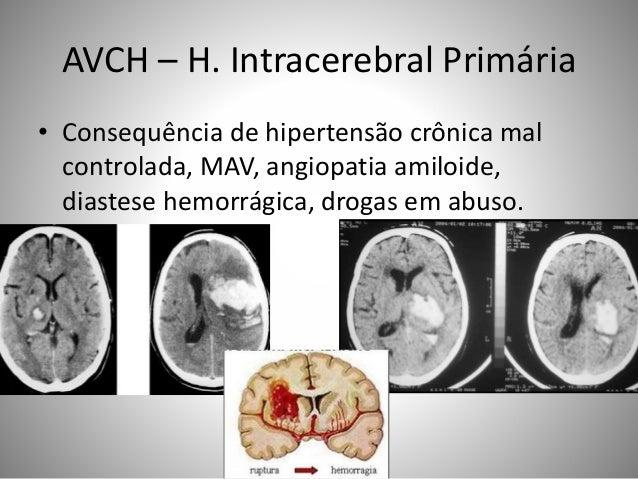 AVCH – H. Intracerebral Primária • Consequência de hipertensão crônica mal controlada, MAV, angiopatia amiloide, diastese ...