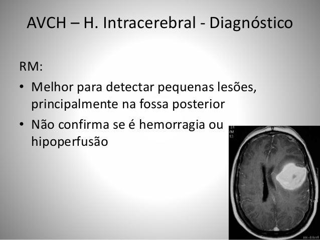 AVCH – H. Intracerebral - Diagnóstico RM: • Melhor para detectar pequenas lesões, principalmente na fossa posterior • Não ...