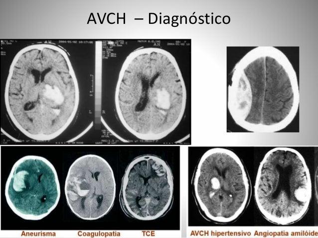 AVCH – Diagnóstico