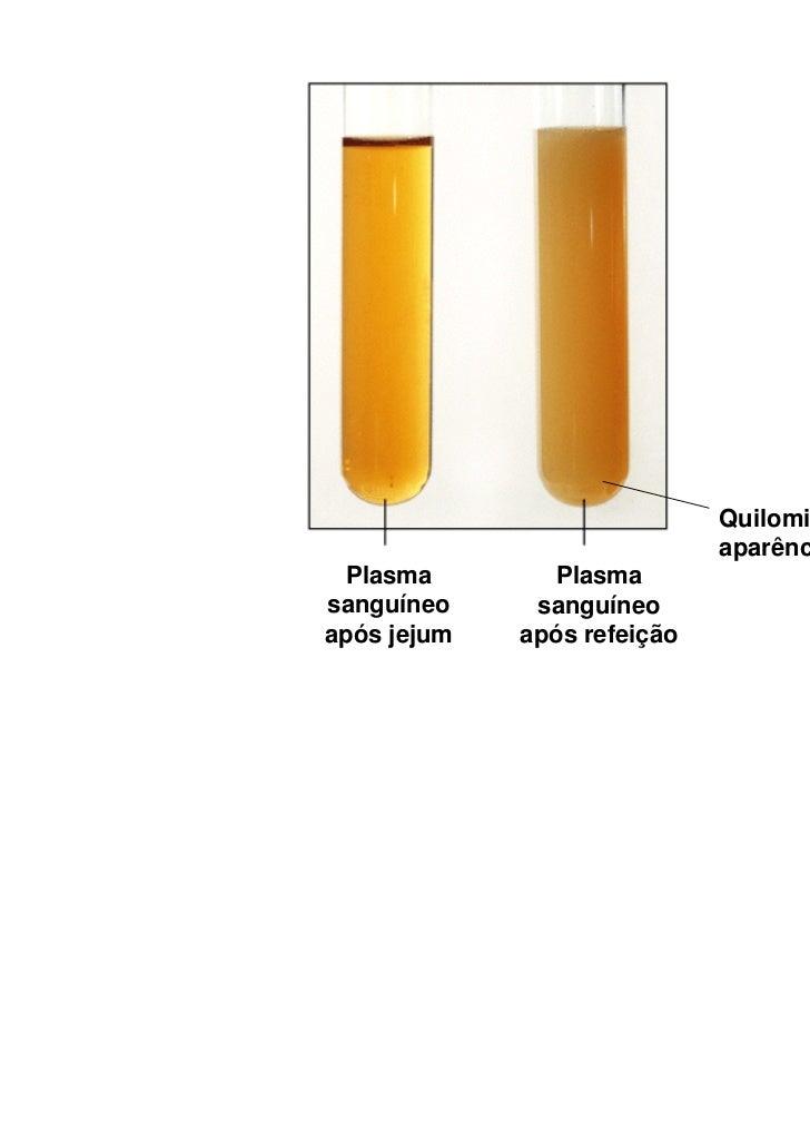 Quilomicrons dão                             aparência leitosa  Plasma        Plasmasanguíneo     sanguíneoapós jejum   ap...