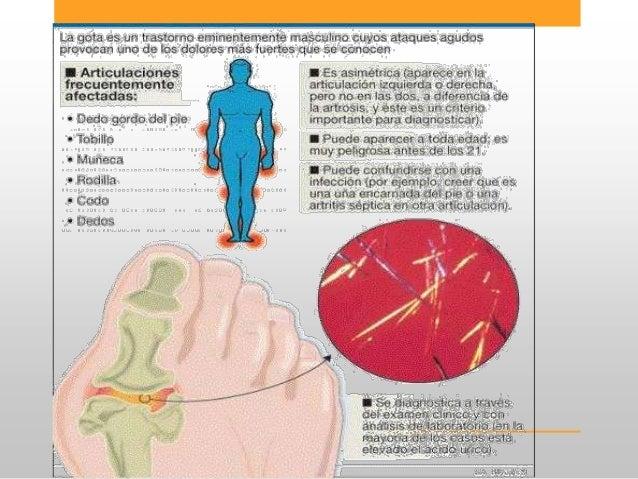 acido urico wikipedia la enciclopedia libre que no puedo con acido urico remedio naturales para acido urico