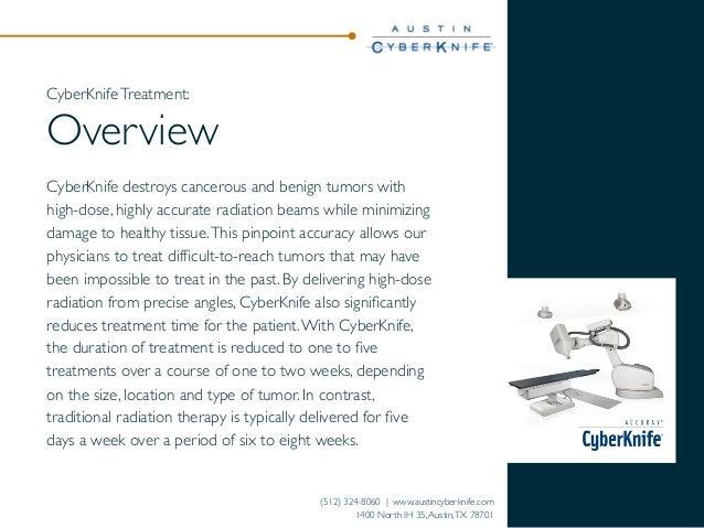Patient Guide to CyberKnife®  Treatment Slide 3
