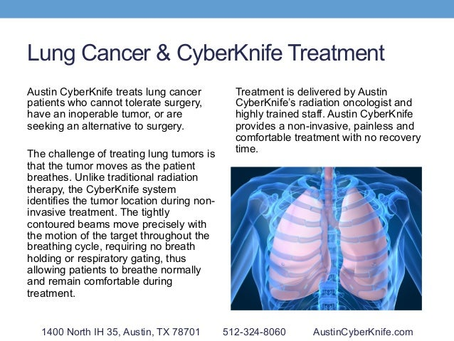 Lung Cancer & CyberKnife Treatment Austin CyberKnife treats lung cancer patients who cannot tolerate surgery, have an inop...