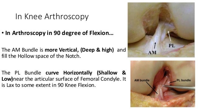 In Knee Arthroscopy • In Arthroscopy in 90 degree of Flexion… The AM Bundle is more Vertical, (Deep & high) and fill the H...