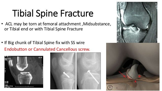 ACL WITH MCL INJURY ACL repair in next sitting MCL requires IMMOBILIZATION in plaster for 4-6 weeks