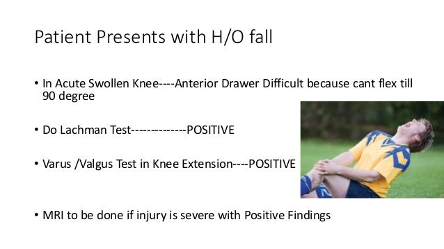 Patient Presents with H/O fall • In Acute Swollen Knee----Anterior Drawer Difficult because cant flex till 90 degree • Do ...