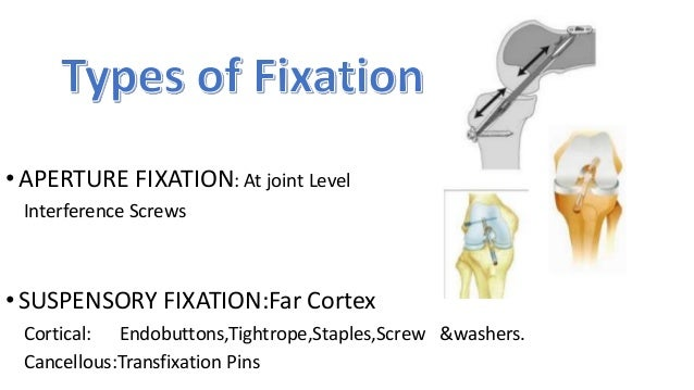 Endobutton • First Generation Suspensory Fixation. • Femoral tunnel had 2 parts :Insertion part and Connection part • Inse...