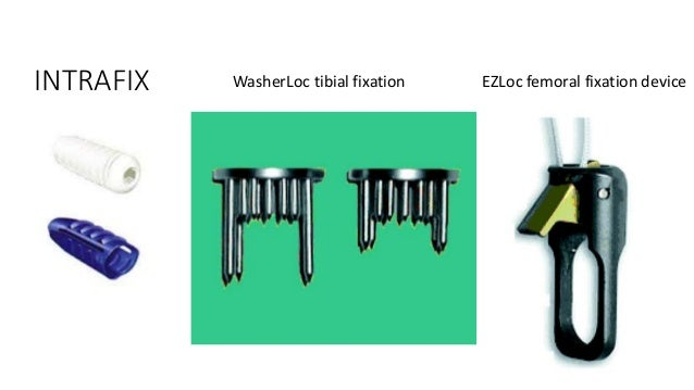 • Second Generation Suspensory Fixation • Loop Length reduced after flipping by Tightening the rope • Allows full Length f...
