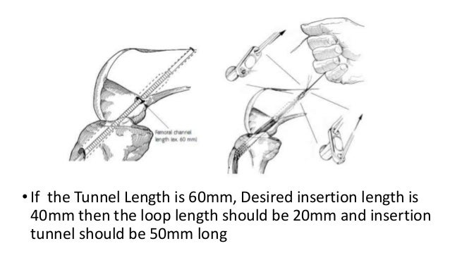 • The positions of the two femoral tunnels were at 11:00 and 9:30 o'clock (right) and 1:00 and 2:30 o'clock (left) with th...