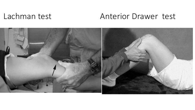Lachman test Anterior Drawer test