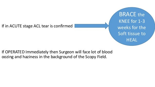 If in ACUTE stage ACL tear is confirmed If OPERATED Immediately then Surgeon will face lot of blood oozing and haziness in...