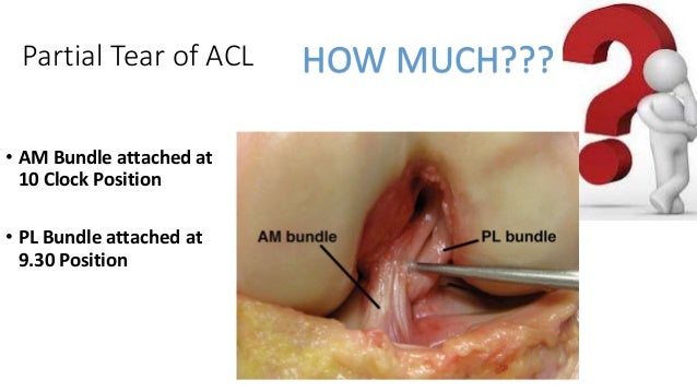 Partial Tear of ACL • AM Bundle attached at 10 Clock Position • PL Bundle attached at 9.30 Position HOW MUCH???