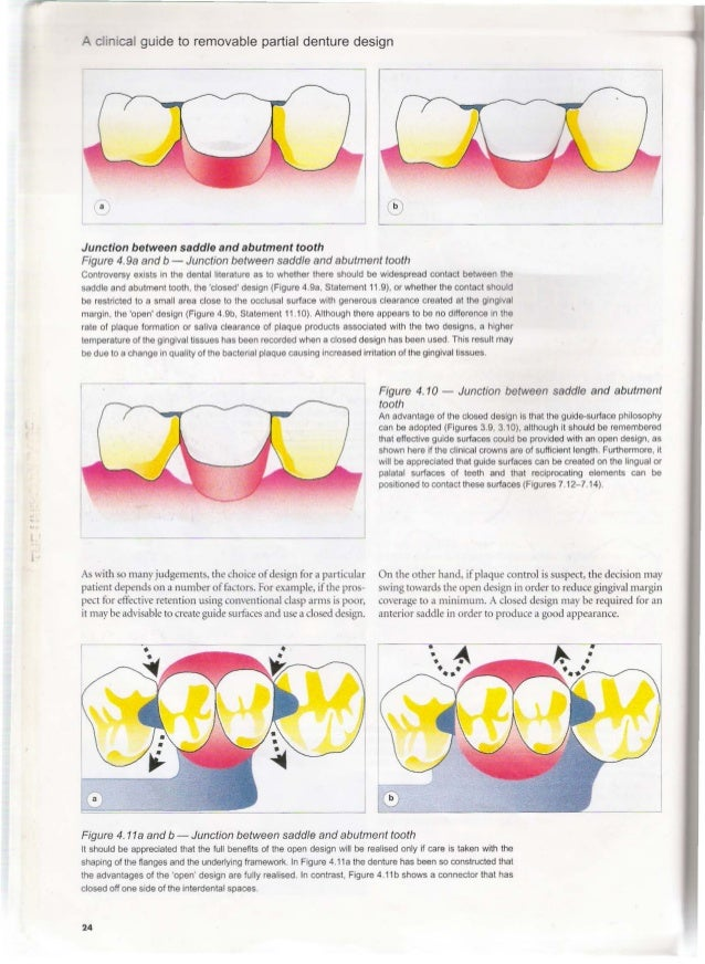 a clinical guide to removable partial denture design rh slideshare net a clinical guide to removable partial dentures davenport pdf clinical guide to removable partial denture design