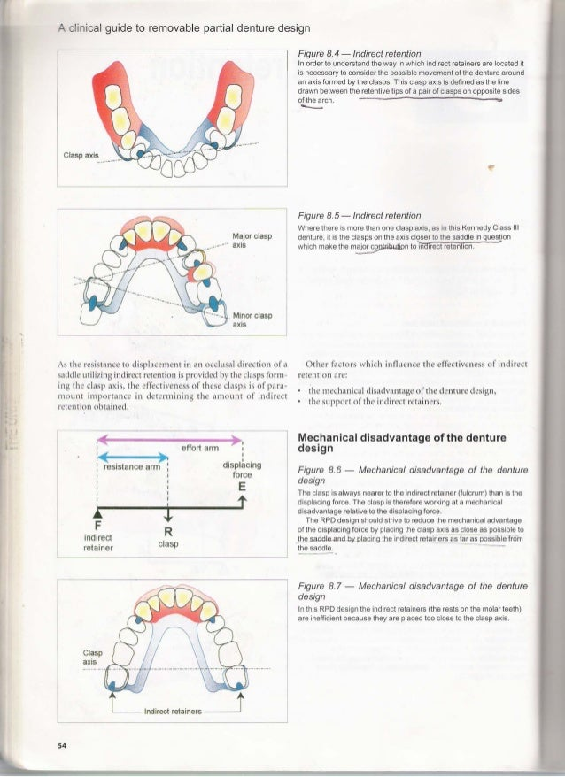 a clinical guide to removable partial denture design rh slideshare net a clinical guide to removable partial dentures download a clinical guide to removable partial dentures davenport pdf