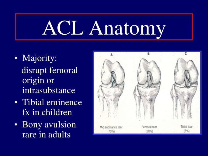 Female Extrinsic Factors: Biomechanical<br />Cutting/landing: more erect hip/trunk<br />Cutting/landing: less knee flexion...