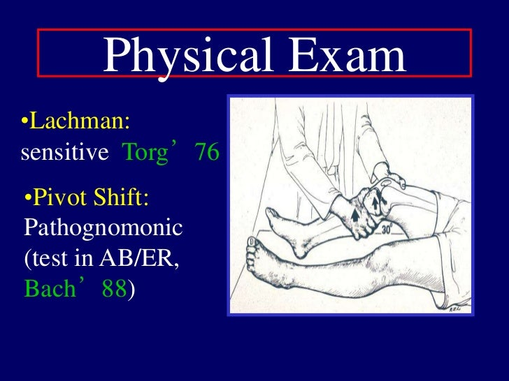 ACL Anatomy<br />Majority:<br />   disrupt femoral origin or intrasubstance<br />Tibial eminence fx in children<br />Bony ...
