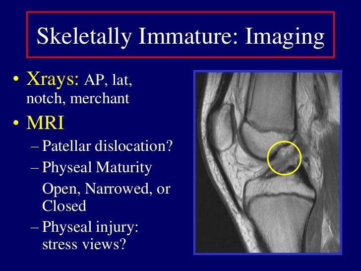 Clinical Presentation<br />Hemarthrosis<br />ACL tear (10-65%)<br />Patellar Dislocation<br />Fracture, Physis<br />Menisc...