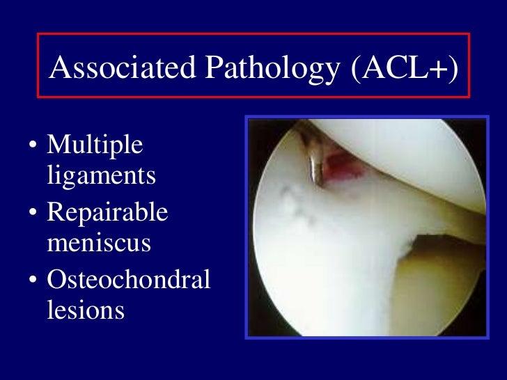 Collateral ligament (physis)</li></li></ul><li>Physical Exam<br /><ul><li>Lachman: sensitive  Torg'76