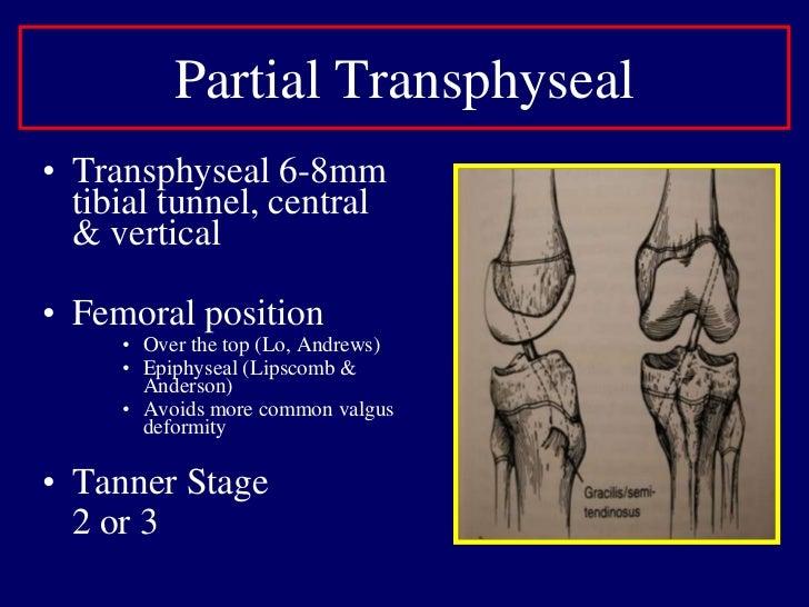 Nonoperative Treatment Outcomes<br />