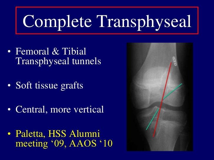 Skeletally ImmatureOperative treatment <br />