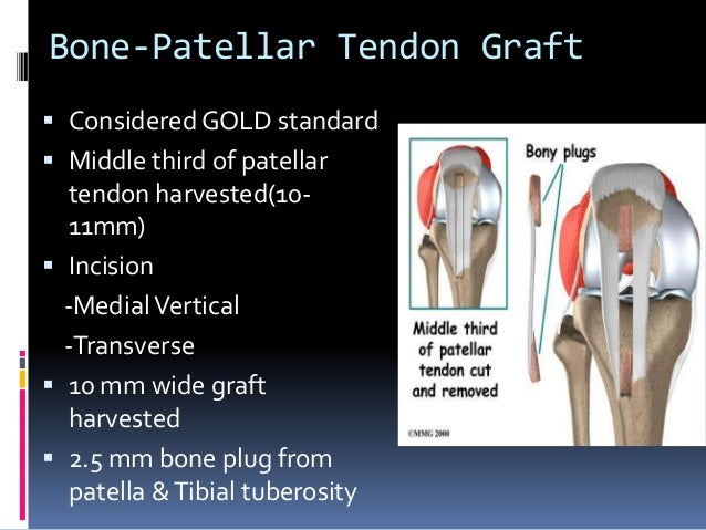 acl reconstruction graft information