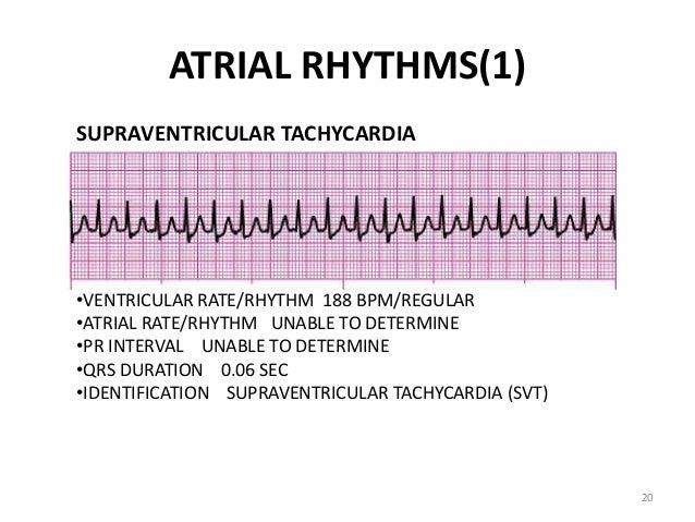 ACLS CE -Part I of III -ECG STRIP INTERPRETATION w Case