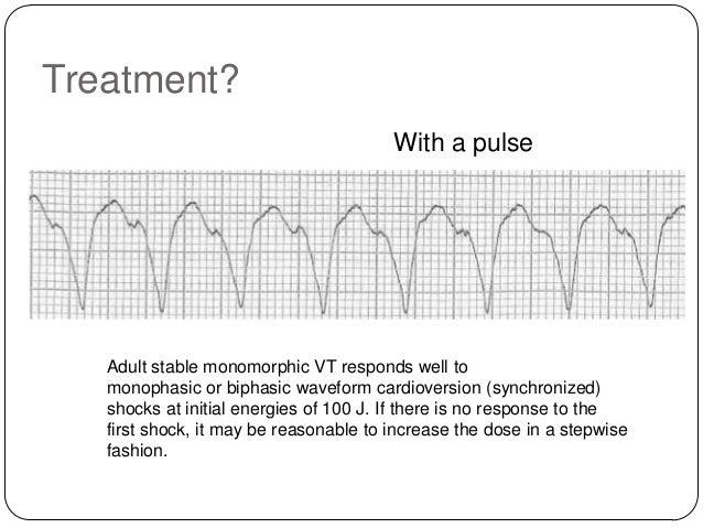 Treatment? Without a pulse  Pulseless arrest algorithm