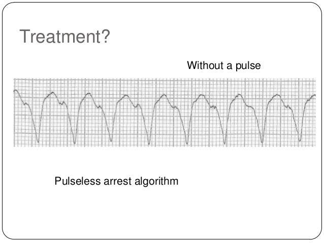 Treatment? SBP 150  SBP 70  Unstable polymorphic ventricular tachycardia is treated with unsynchronized shocks (defibrilla...