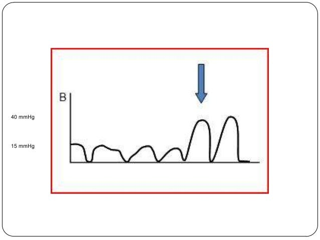High Quality CPR  Maintain 30:2 ratio until advanced airway   Minimize interruptions in CPR  De-emphasis on Devices, Dr...
