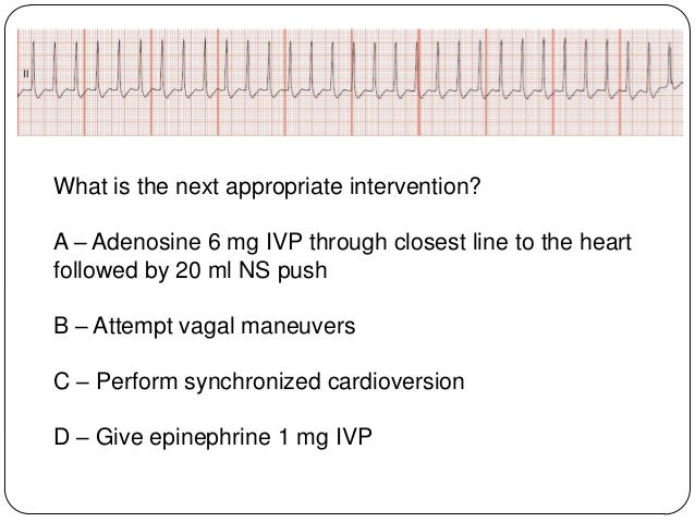 Stable or Unstable SVT?  Shortness of breath  Palpitation feeling in chest  Ongoing chest pain  Dizziness  Rapid brea...