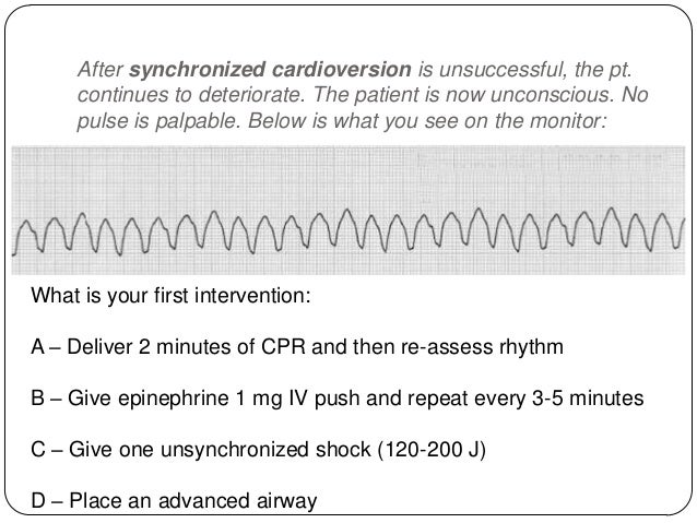 You have given the epinephrine or vasopressin and completed the 5 cycles of CPR. A rhythm check reveals no change. You att...