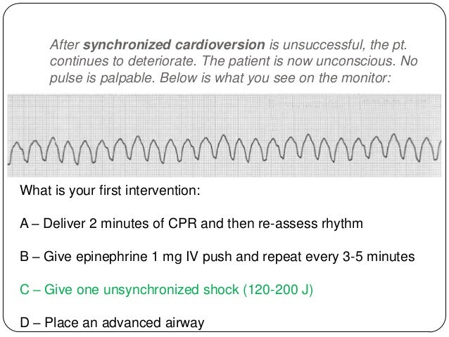 The third shock does not change the rhythm and you restart CPR. You have shocked, you have given vasopressors (epinephrine...
