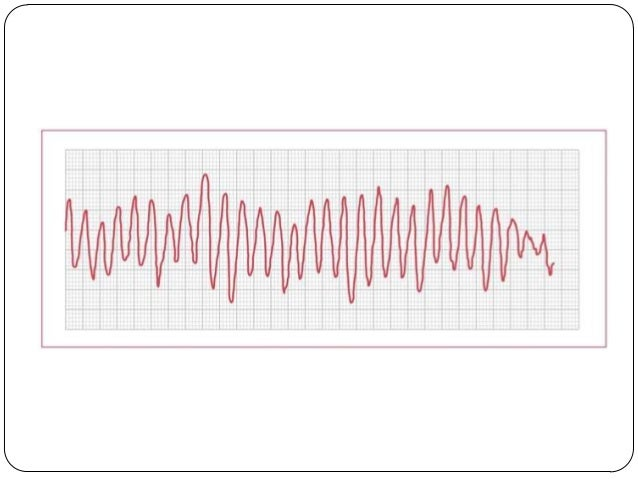  Biphasic unsynchronized shock (ie defibrillation)  delivered at 200J  Next step?  ROSC obtained during next rhythm che...