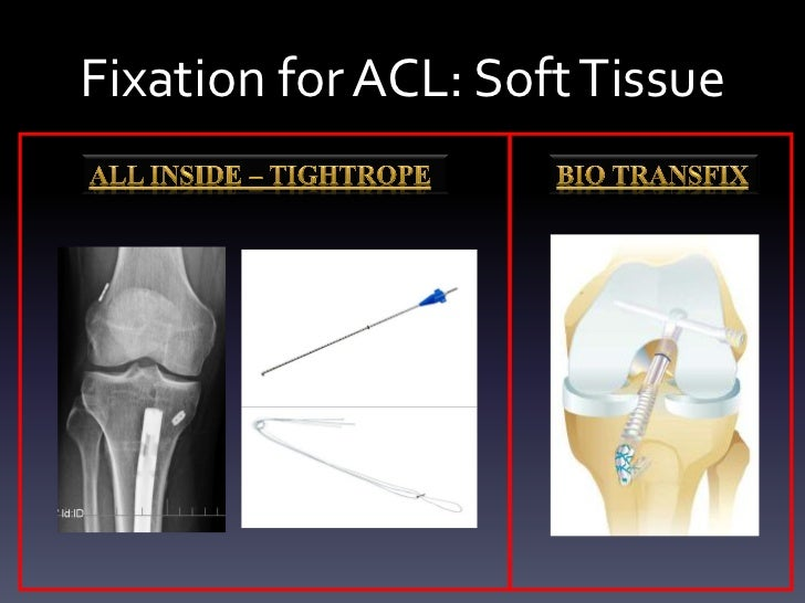 Fixation for ACL: Soft Tissue