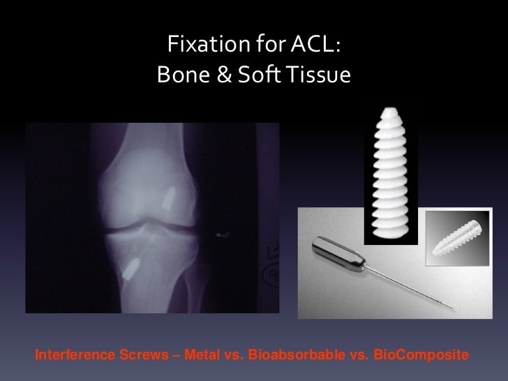 Fixation for ACL:                 Bone & Soft TissueInterference Screws – Metal vs. Bioabsorbable vs. BioComposite
