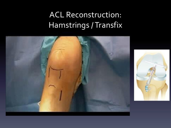 ACL Reconstruction:Hamstrings / Transfix