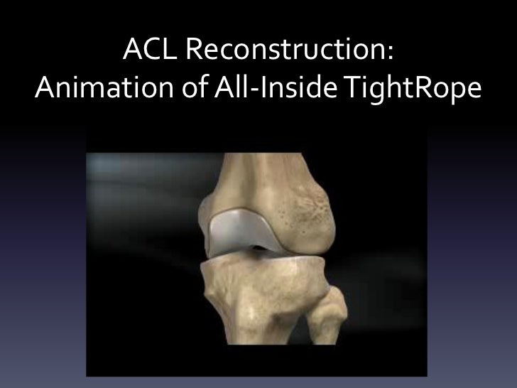 ACL Reconstruction:Animation of All-Inside TightRope