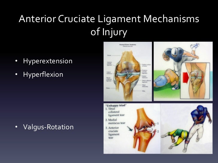 Anterior Cruciate Ligament Mechanisms                 of Injury• Hyperextension• Hyperflexion• Valgus-Rotation